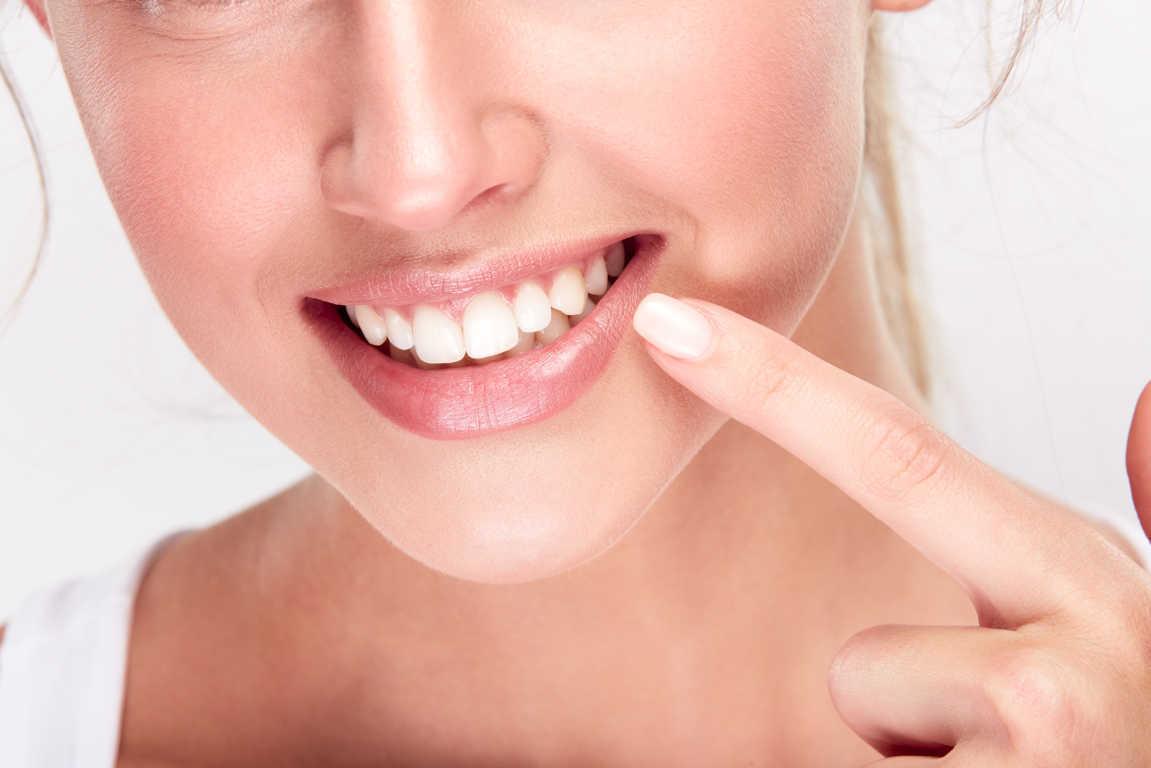 ¿Qué debes saber sobre el blanqueamiento dental